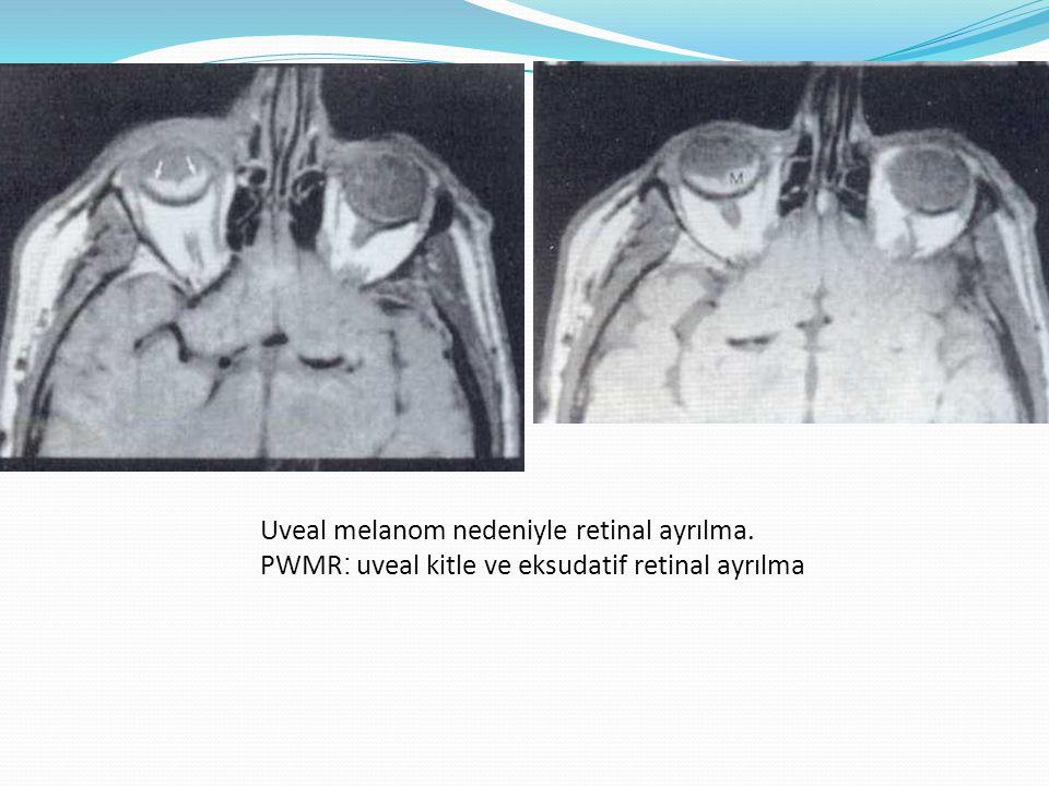 Uveal melanom nedeniyle retinal ayrılma. PWMR : uveal kitle ve eksudatif retinal ayrılma