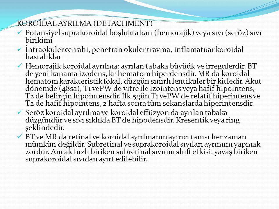 KOROİDAL AYRILMA (DETACHMENT) Potansiyel suprakoroidal boşlukta kan (hemorajik) veya sıvı (seröz) sıvı birikimi İntraokuler cerrahi, penetran okuler t
