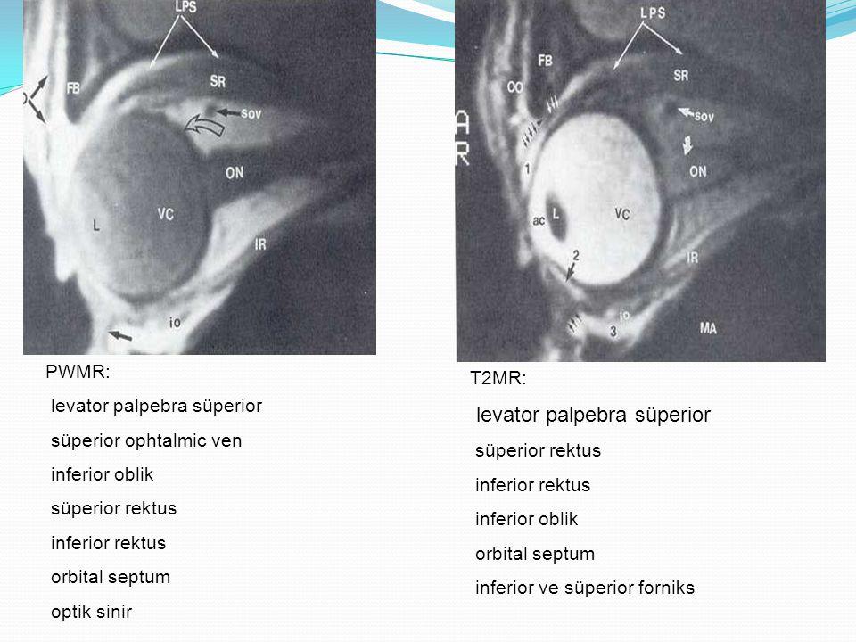 PWMR: levator palpebra süperior süperior ophtalmic ven inferior oblik süperior rektus inferior rektus orbital septum optik sinir T2MR: levator palpebr