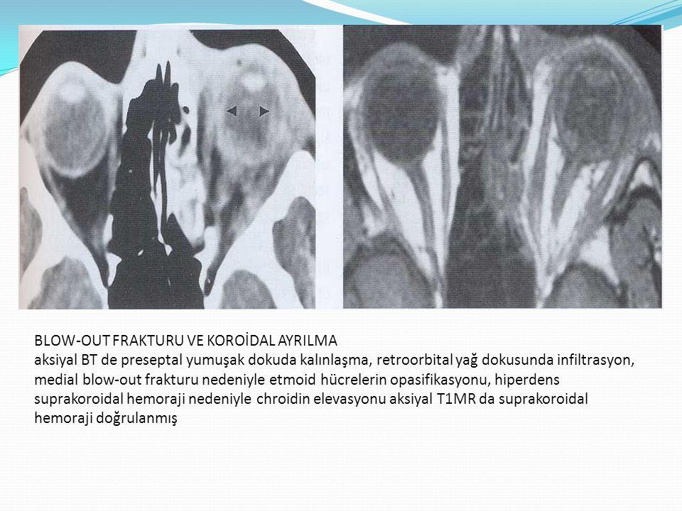 BLOW-OUT FRAKTURU VE KOROİDAL AYRILMA aksiyal BT de preseptal yumuşak dokuda kalınlaşma, retroorbital yağ dokusunda infiltrasyon, medial blow-out frak