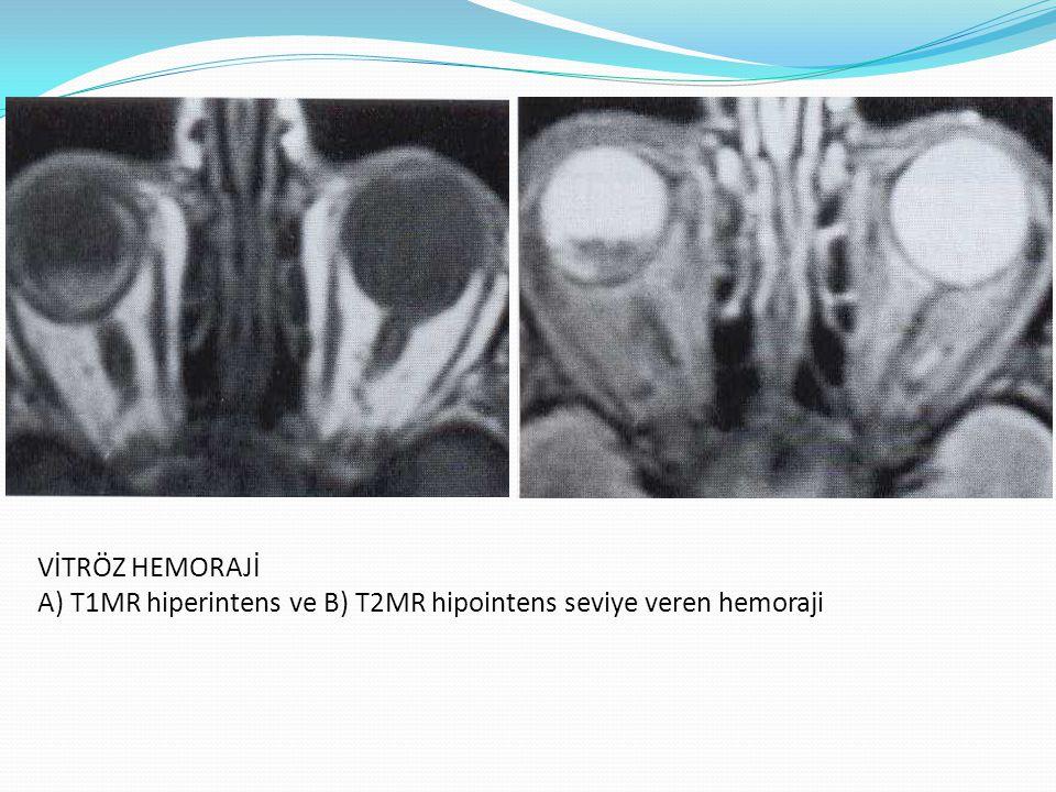 VİTRÖZ HEMORAJİ A) T1MR hiperintens ve B) T2MR hipointens seviye veren hemoraji