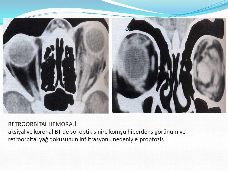 RETROORBİTAL HEMORAJİ aksiyal ve koronal BT de sol optik sinire komşu hiperdens görünüm ve retroorbital yağ dokusunun infiltrasyonu nedeniyle proptozi