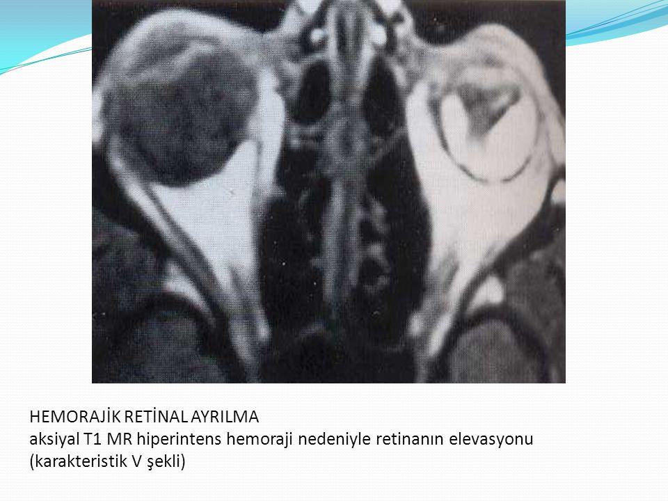 HEMORAJİK RETİNAL AYRILMA aksiyal T1 MR hiperintens hemoraji nedeniyle retinanın elevasyonu (karakteristik V şekli)
