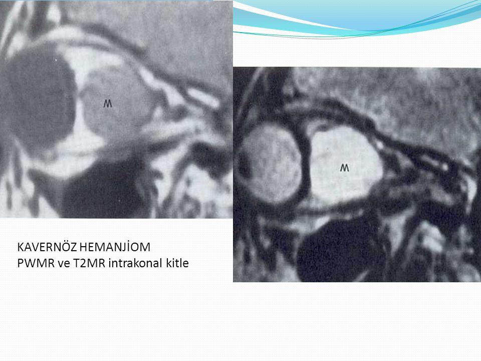 KAVERNÖZ HEMANJİOM PWMR ve T2MR intrakonal kitle