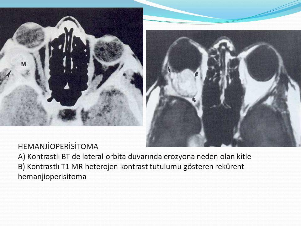 HEMANJİOPERİSİTOMA A) Kontrastlı BT de lateral orbita duvarında erozyona neden olan kitle B) Kontrastlı T1 MR heterojen kontrast tutulumu gösteren rek