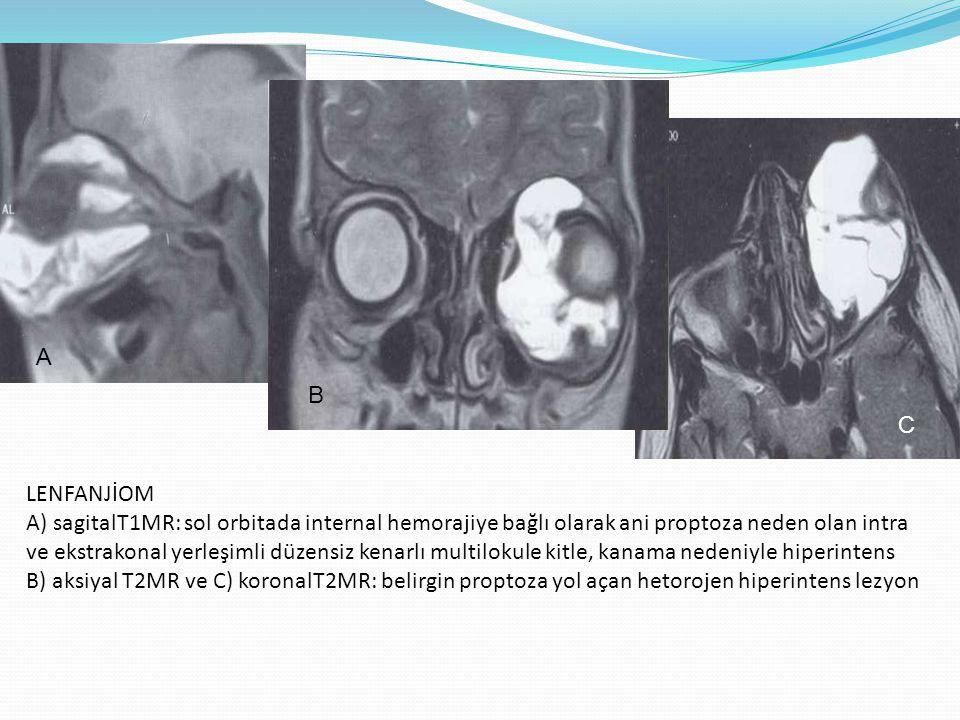 LENFANJİOM A) sagitalT1MR: sol orbitada internal hemorajiye bağlı olarak ani proptoza neden olan intra ve ekstrakonal yerleşimli düzensiz kenarlı mult