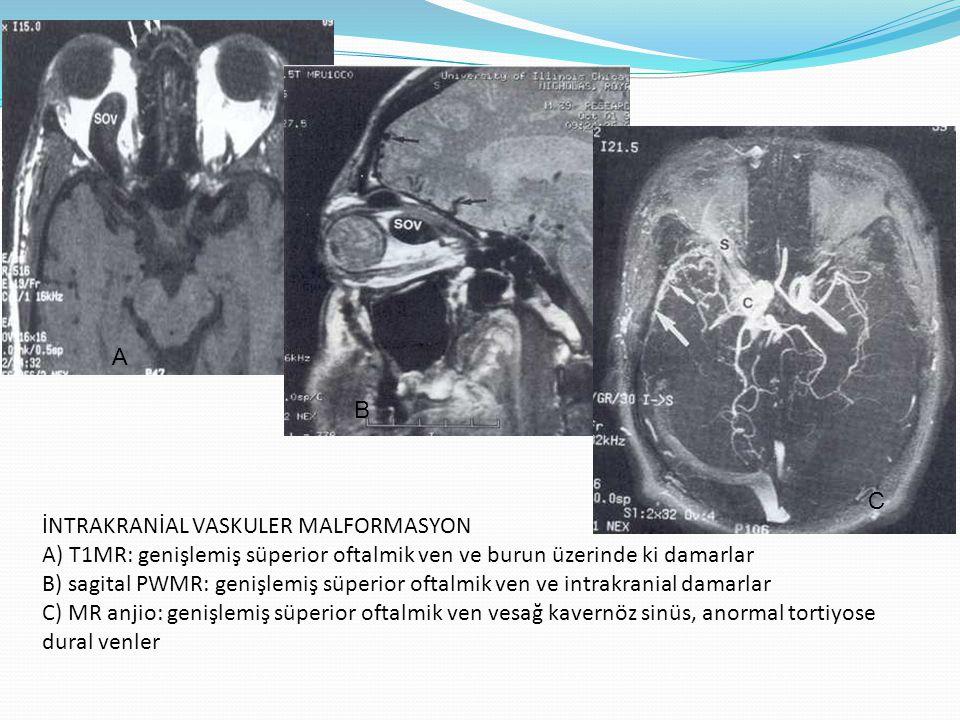 İNTRAKRANİAL VASKULER MALFORMASYON A) T1MR: genişlemiş süperior oftalmik ven ve burun üzerinde ki damarlar B) sagital PWMR: genişlemiş süperior oftalm