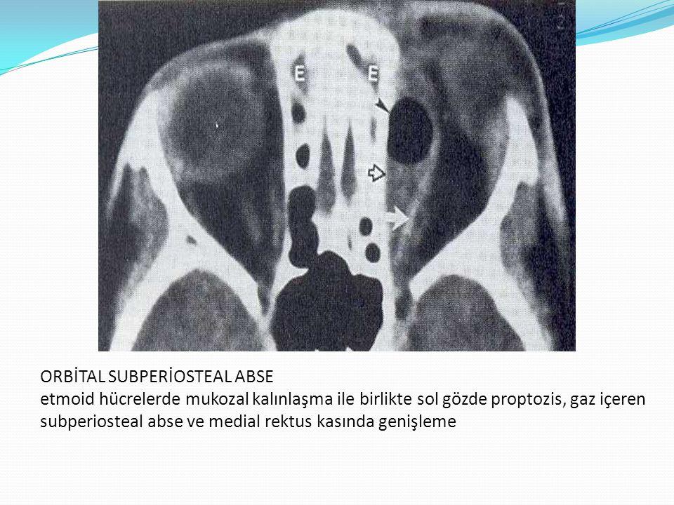ORBİTAL SUBPERİOSTEAL ABSE etmoid hücrelerde mukozal kalınlaşma ile birlikte sol gözde proptozis, gaz içeren subperiosteal abse ve medial rektus kasın