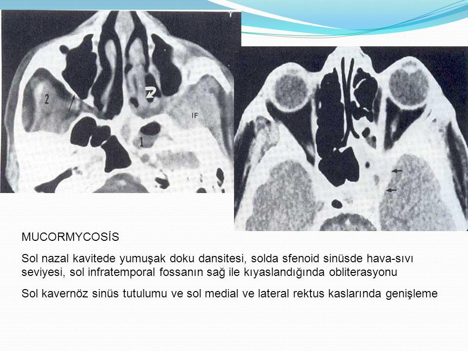 MUCORMYCOSİS Sol nazal kavitede yumuşak doku dansitesi, solda sfenoid sinüsde hava-sıvı seviyesi, sol infratemporal fossanın sağ ile kıyaslandığında o