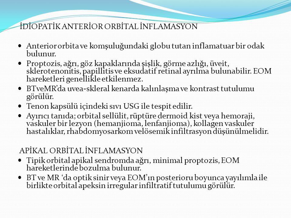 İDİOPATİK ANTERİOR ORBİTAL İNFLAMASYON Anterior orbita ve komşuluğundaki globu tutan inflamatuar bir odak bulunur. Proptozis, ağrı, göz kapaklarında ş
