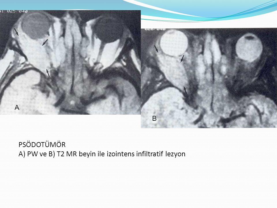PSÖDOTÜMÖR A) PW ve B) T2 MR beyin ile izointens infiltratif lezyon A B