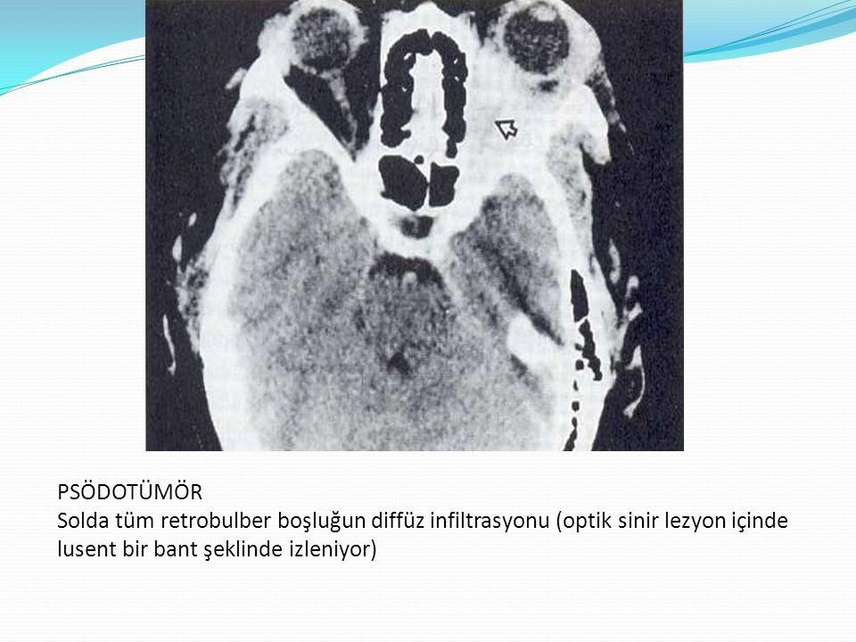 PSÖDOTÜMÖR Solda tüm retrobulber boşluğun diffüz infiltrasyonu (optik sinir lezyon içinde lusent bir bant şeklinde izleniyor)
