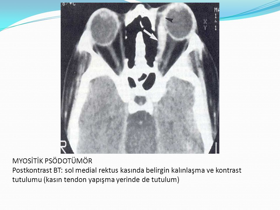 MYOSİTİK PSÖDOTÜMÖR Postkontrast BT: sol medial rektus kasında belirgin kalınlaşma ve kontrast tutulumu (kasın tendon yapışma yerinde de tutulum)