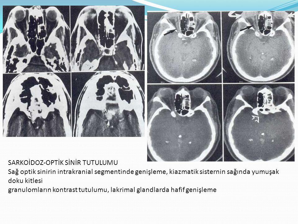 SARKOİDOZ-OPTİK SİNİR TUTULUMU Sağ optik sinirin intrakranial segmentinde genişleme, kiazmatik sisternin sağında yumuşak doku kitlesi granulomların ko