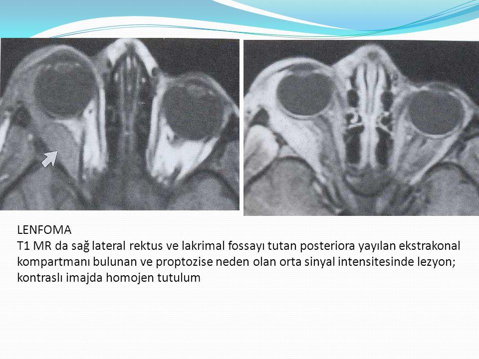 LENFOMA T1 MR da sağ lateral rektus ve lakrimal fossayı tutan posteriora yayılan ekstrakonal kompartmanı bulunan ve proptozise neden olan orta sinyal