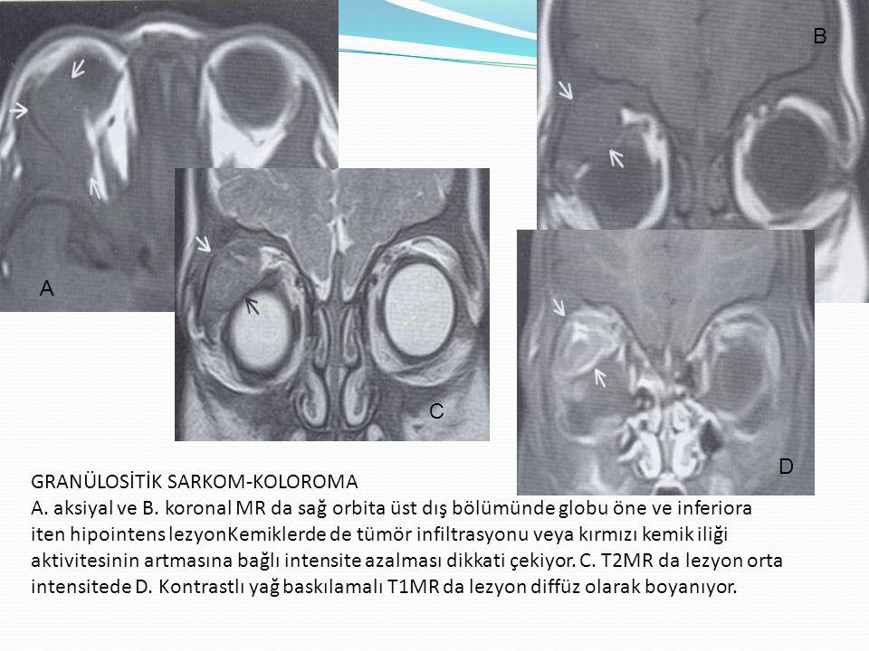 GRANÜLOSİTİK SARKOM-KOLOROMA A. aksiyal ve B. koronal MR da sağ orbita üst dış bölümünde globu öne ve inferiora iten hipointens lezyonKemiklerde de tü