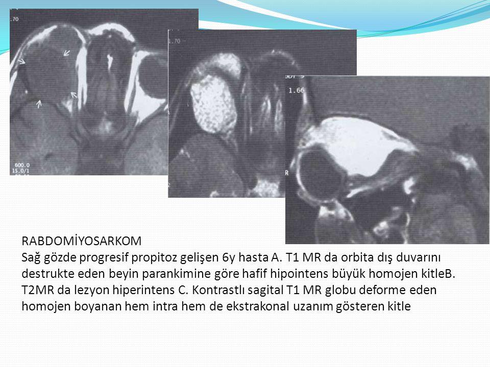 RABDOMİYOSARKOM Sağ gözde progresif propitoz gelişen 6y hasta A. T1 MR da orbita dış duvarını destrukte eden beyin parankimine göre hafif hipointens b