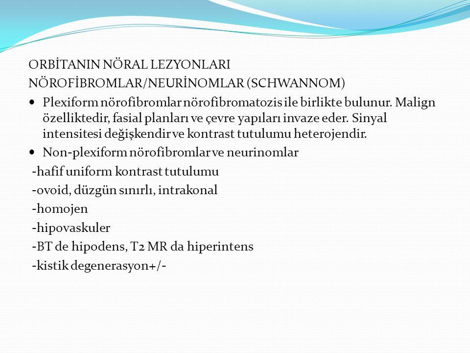 ORBİTANIN NÖRAL LEZYONLARI NÖROFİBROMLAR/NEURİNOMLAR (SCHWANNOM) Plexiform nörofibromlar nörofibromatozis ile birlikte bulunur. Malign özelliktedir, f