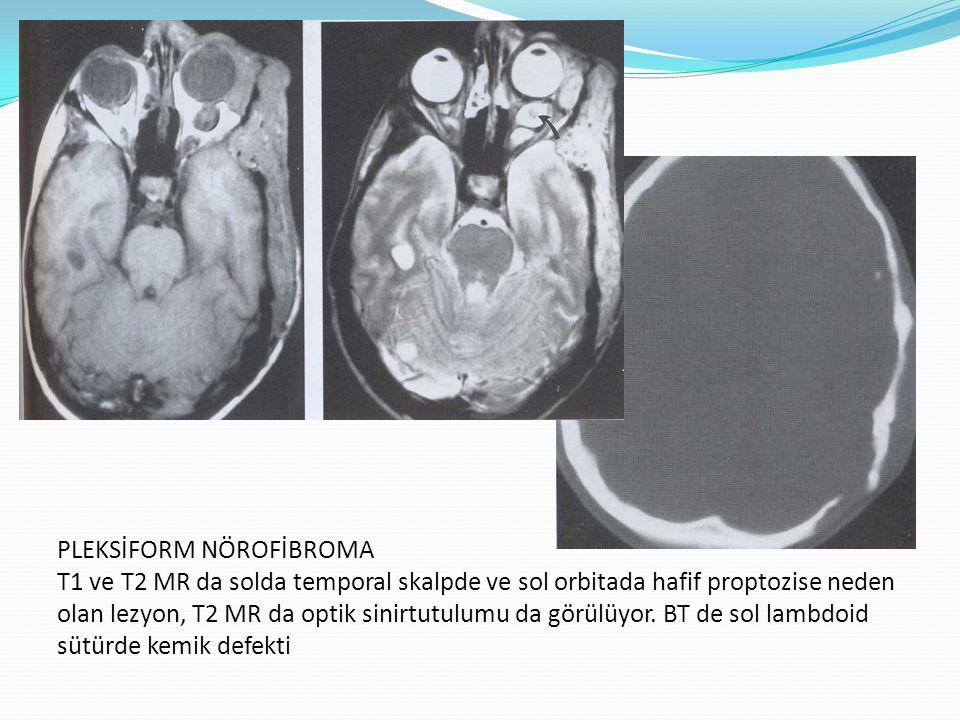 PLEKSİFORM NÖROFİBROMA T1 ve T2 MR da solda temporal skalpde ve sol orbitada hafif proptozise neden olan lezyon, T2 MR da optik sinirtutulumu da görül