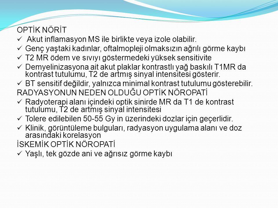 OPTİK NÖRİT Akut inflamasyon MS ile birlikte veya izole olabilir. Genç yaştaki kadınlar, oftalmopleji olmaksızın ağrılı görme kaybı T2 MR ödem ve sıvı
