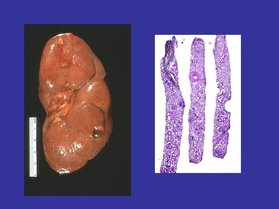 pFSGS UN NAKİL BÖBREKTE TEKRARININ ÖN GÖRDÜRÜCÜLERİ Primer hastalığın genç yaşta (<20) gelişmesi pFSGS in hızlı seyirli olması –Tanıdan SDBY ne varış süresi <3 yıl Kendi hasta böbreğinde mesengial hipersellülarite varlığı Hasta beyaz/Donör AA Önceki nakil böbreğinde rekürens, greft kaybı hikayesi NPHS2 geninde mutasyonla karekterize sporadik pFSGS olgularında nakil sonrası tekrar riski YÜKSEK.