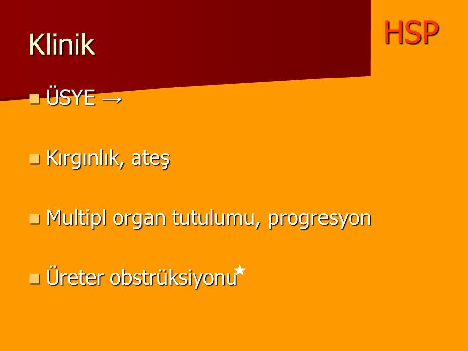 Klinik ÜSYE → ÜSYE → Kırgınlık, ateş Kırgınlık, ateş Multipl organ tutulumu, progresyon Multipl organ tutulumu, progresyon Üreter obstrüksiyonu Üreter