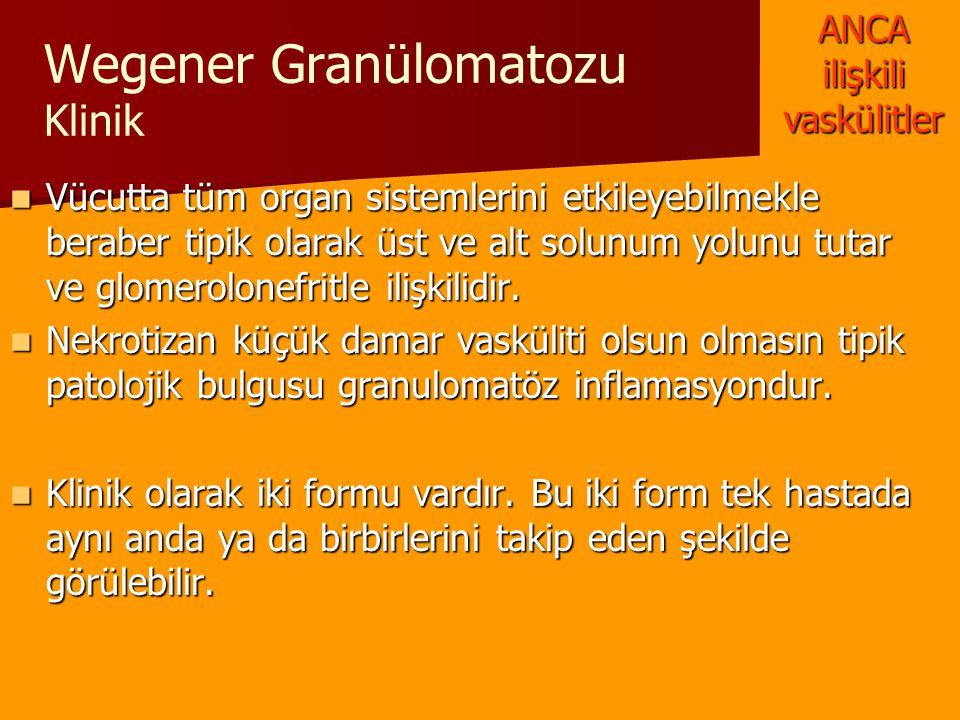 Wegener Granülomatozu Klinik Vücutta tüm organ sistemlerini etkileyebilmekle beraber tipik olarak üst ve alt solunum yolunu tutar ve glomerolonefritle