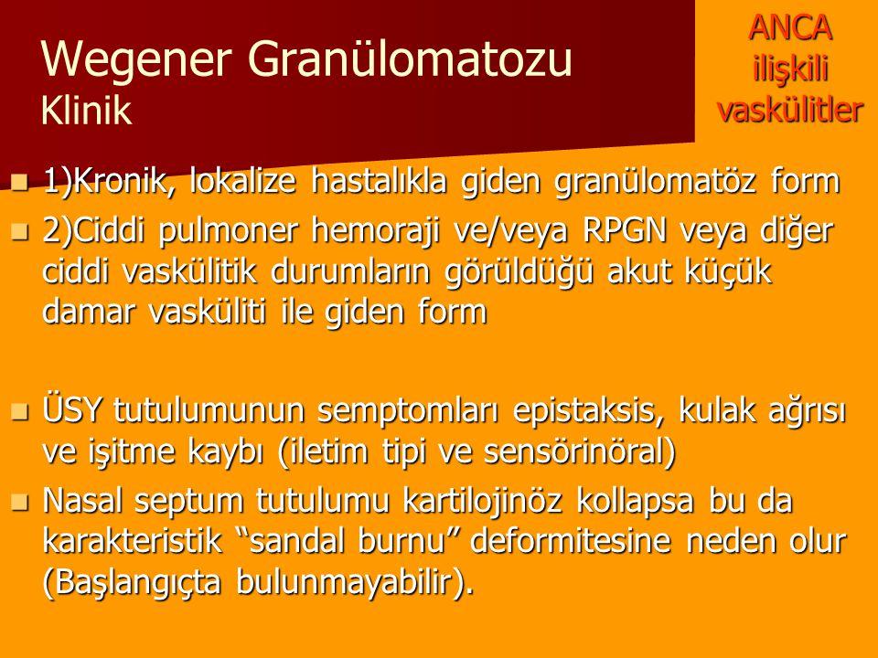 Wegener Granülomatozu Klinik 1)Kronik, lokalize hastalıkla giden granülomatöz form 1)Kronik, lokalize hastalıkla giden granülomatöz form 2)Ciddi pulmo