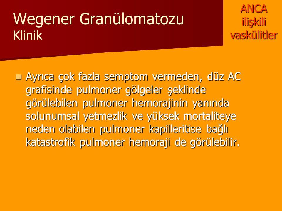 Wegener Granülomatozu Klinik Ayrıca çok fazla semptom vermeden, düz AC grafisinde pulmoner gölgeler şeklinde görülebilen pulmoner hemorajinin yanında
