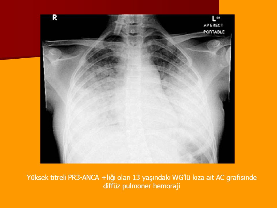 Yüksek titreli PR3-ANCA +liği olan 13 yaşındaki WG'lü kıza ait AC grafisinde diffüz pulmoner hemoraji