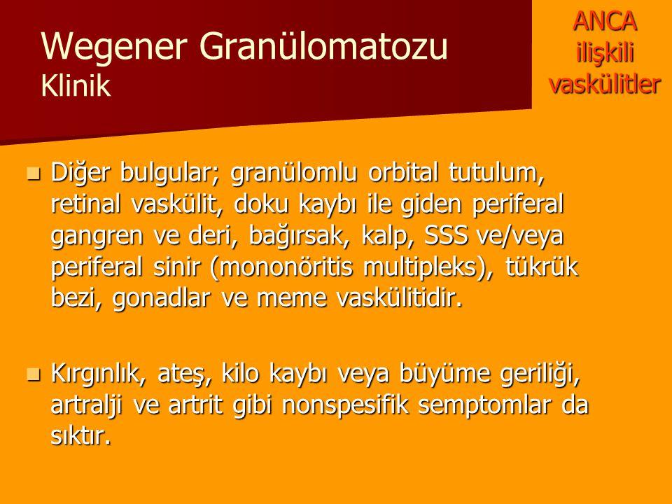 Wegener Granülomatozu Klinik Diğer bulgular; granülomlu orbital tutulum, retinal vaskülit, doku kaybı ile giden periferal gangren ve deri, bağırsak, k
