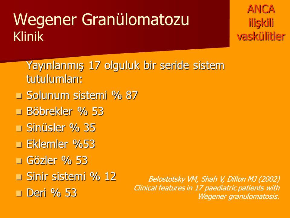 Wegener Granülomatozu Klinik Yayınlanmış 17 olguluk bir seride sistem tutulumları: Yayınlanmış 17 olguluk bir seride sistem tutulumları: Solunum siste