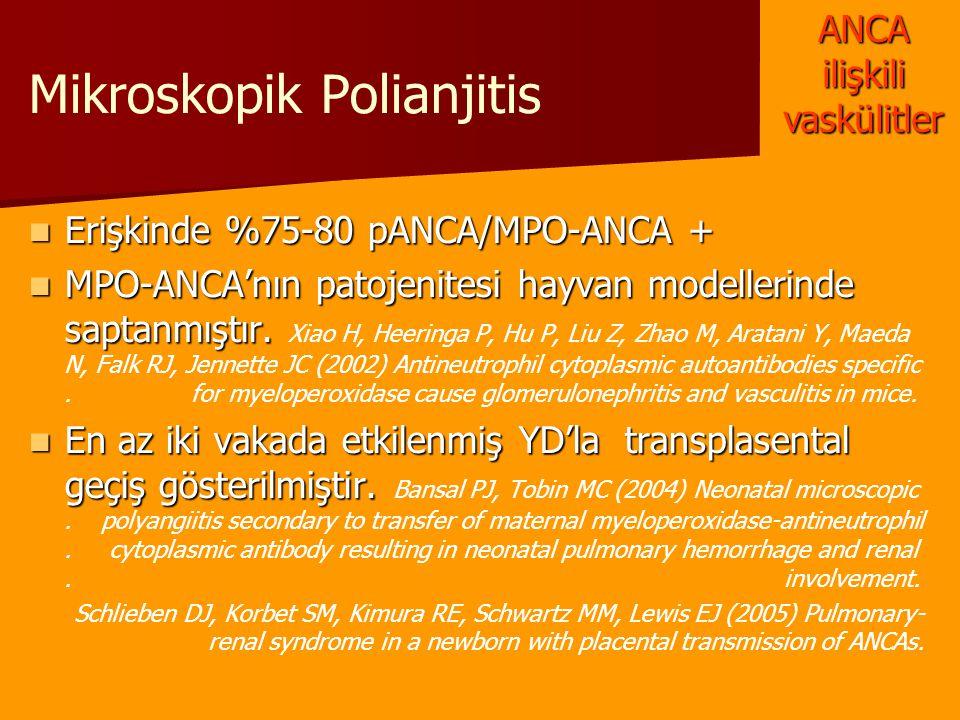 Mikroskopik Polianjitis Erişkinde %75-80 pANCA/MPO-ANCA + Erişkinde %75-80 pANCA/MPO-ANCA + MPO-ANCA'nın patojenitesi hayvan modellerinde saptanmıştır