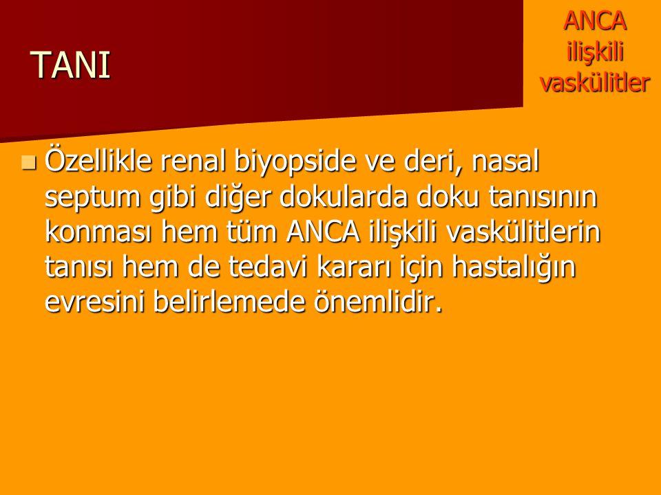 TANI Özellikle renal biyopside ve deri, nasal septum gibi diğer dokularda doku tanısının konması hem tüm ANCA ilişkili vaskülitlerin tanısı hem de ted