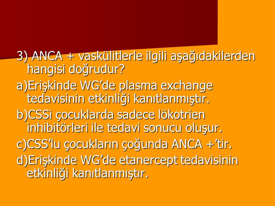 3) ANCA + vaskülitlerle ilgili aşağıdakilerden hangisi doğrudur? a)Erişkinde WG'de plasma exchange tedavisinin etkinliği kanıtlanmıştır. b)CSSi çocukl