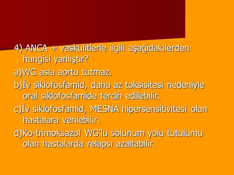 4) ANCA + vaskülitlerle ilgili aşağıdakilerden hangisi yanlıştır? a)WG asla aortu tutmaz. b)İv siklofosfamid, daha az toksisitesi nedeniyle oral siklo