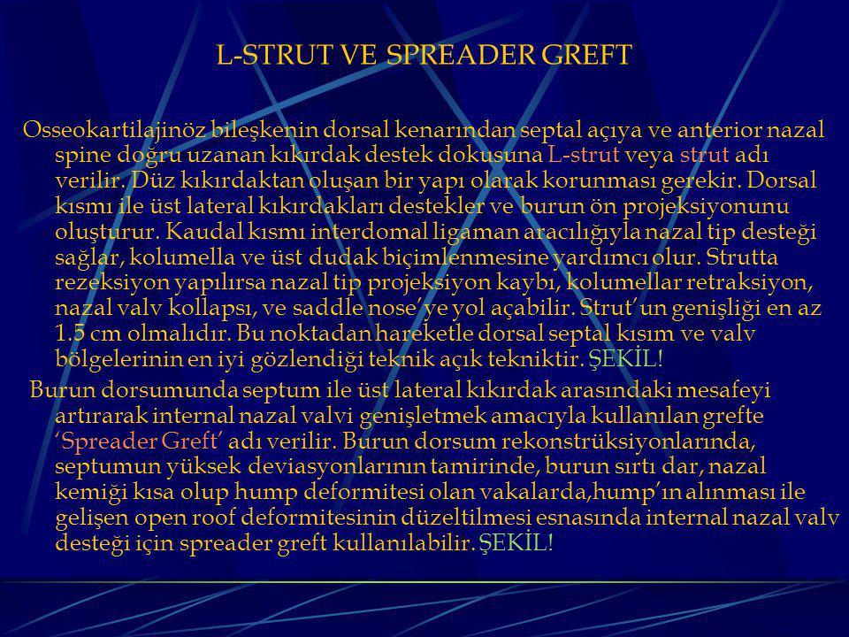 L-STRUT VE SPREADER GREFT Osseokartilajinöz bileşkenin dorsal kenarından septal açıya ve anterior nazal spine doğru uzanan kıkırdak destek dokusuna L-strut veya strut adı verilir.
