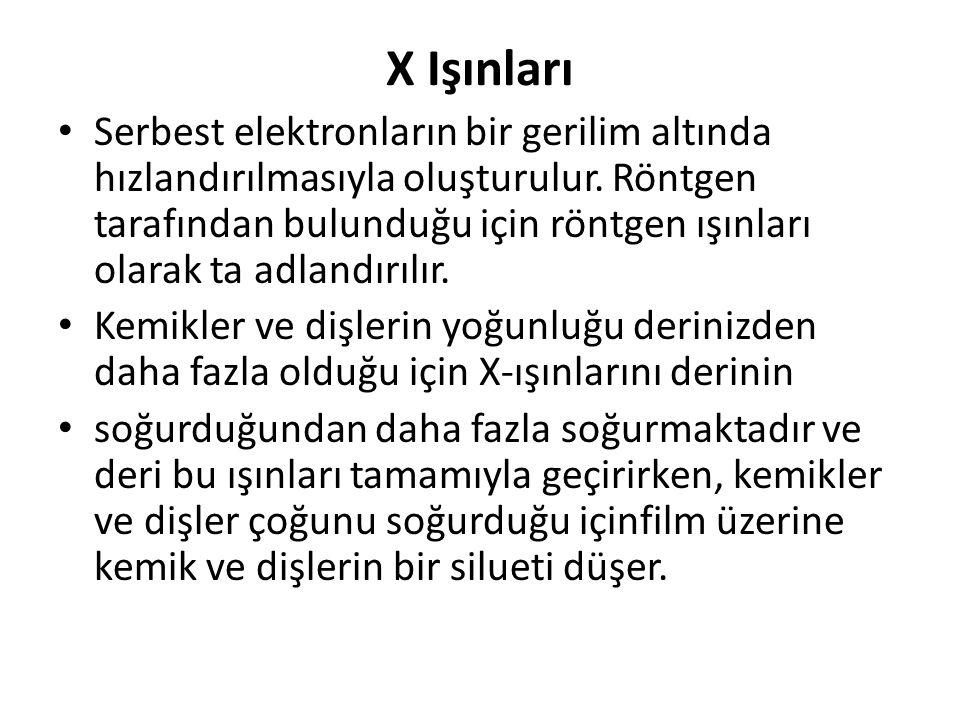 X Işınları Serbest elektronların bir gerilim altında hızlandırılmasıyla oluşturulur. Röntgen tarafından bulunduğu için röntgen ışınları olarak ta adla