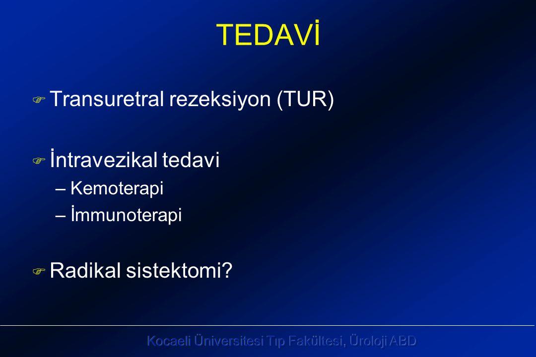 TEDAVİ F Transuretral rezeksiyon (TUR) F İntravezikal tedavi –Kemoterapi –İmmunoterapi F Radikal sistektomi?
