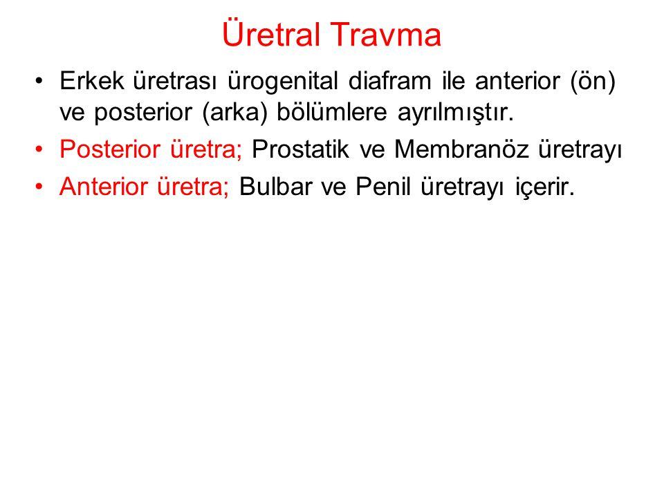 Üretral Travma Erkek üretrası ürogenital diafram ile anterior (ön) ve posterior (arka) bölümlere ayrılmıştır. Posterior üretra; Prostatik ve Membranöz