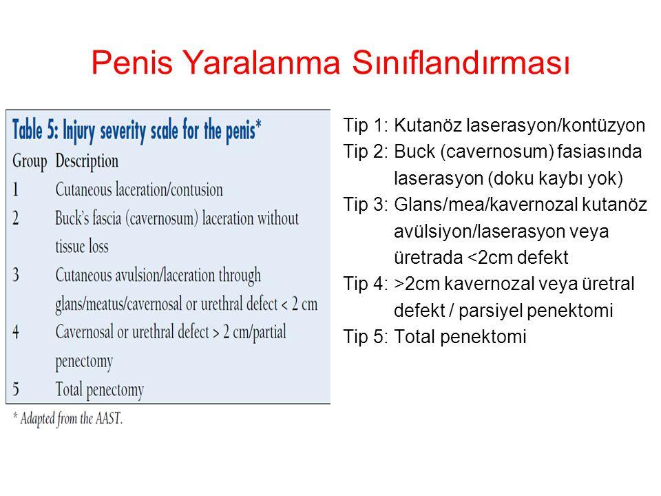 Penis Yaralanma Sınıflandırması Tip 1: Kutanöz laserasyon/kontüzyon Tip 2: Buck (cavernosum) fasiasında laserasyon (doku kaybı yok) Tip 3: Glans/mea/k