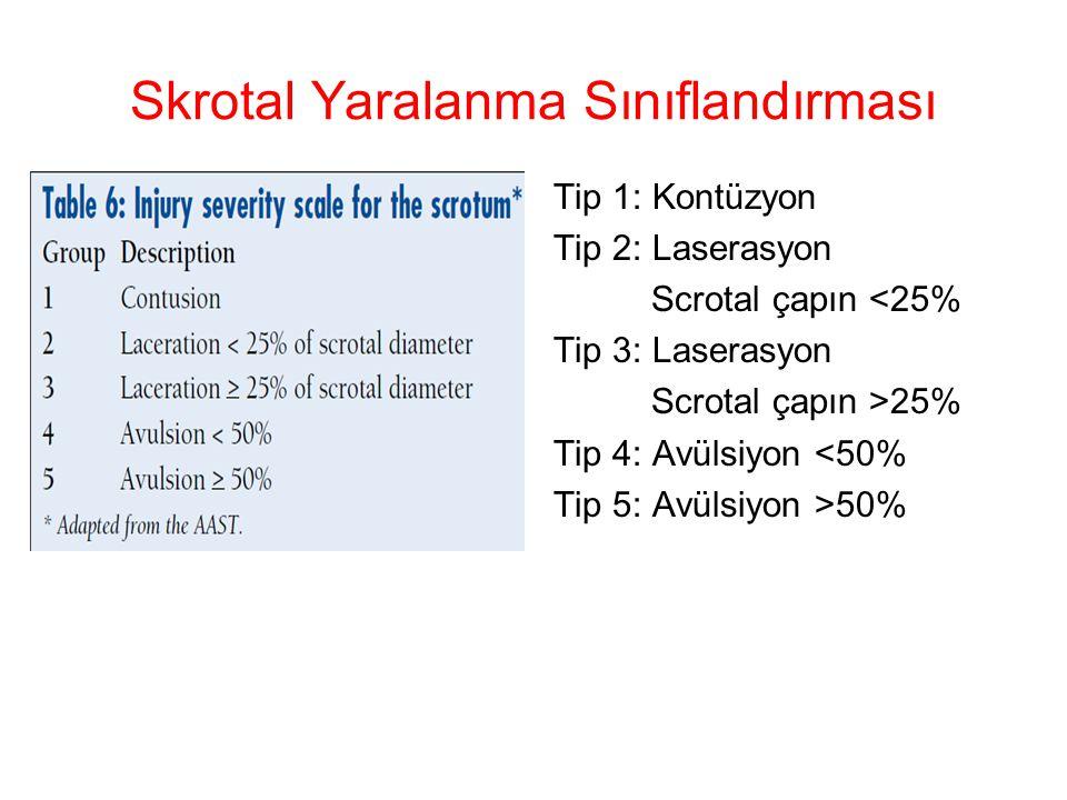 Skrotal Yaralanma Sınıflandırması Tip 1: Kontüzyon Tip 2: Laserasyon Scrotal çapın <25% Tip 3: Laserasyon Scrotal çapın >25% Tip 4: Avülsiyon <50% Tip