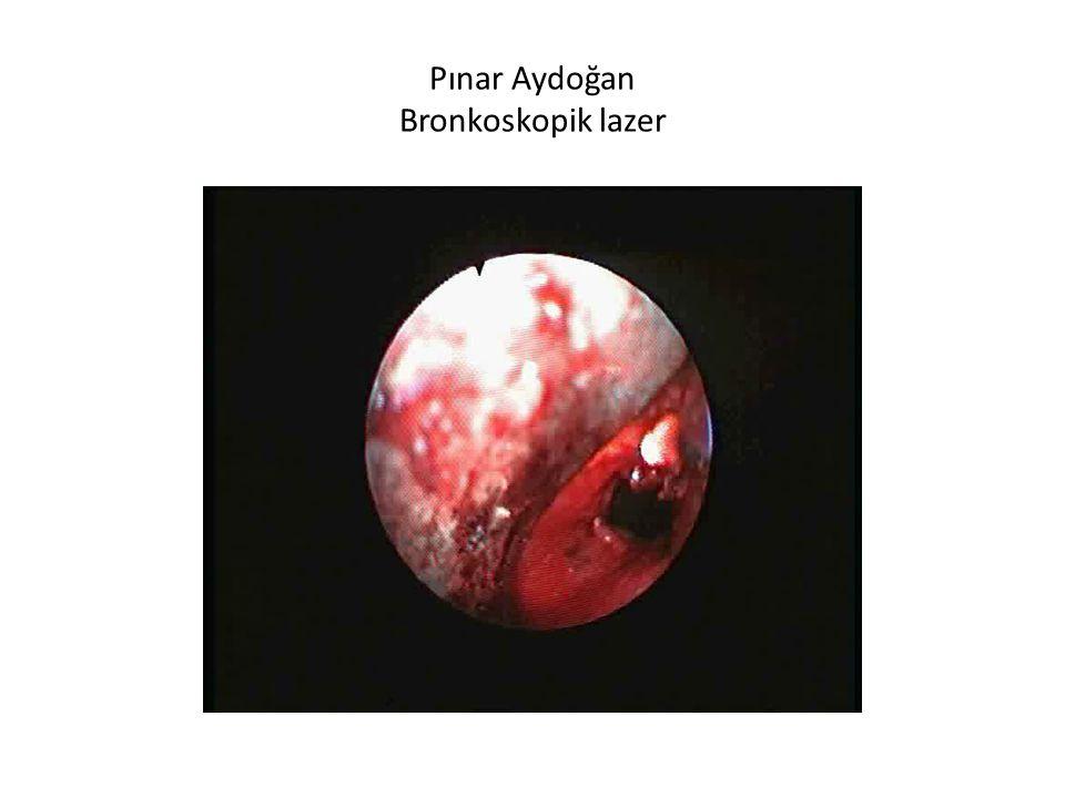 Pınar Aydoğan Bronkoskopik lazer