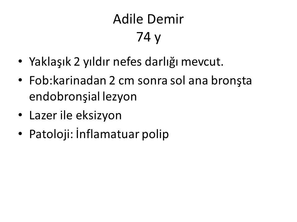 Selma Erdem Trakeal membranöz yırtık (tanı)