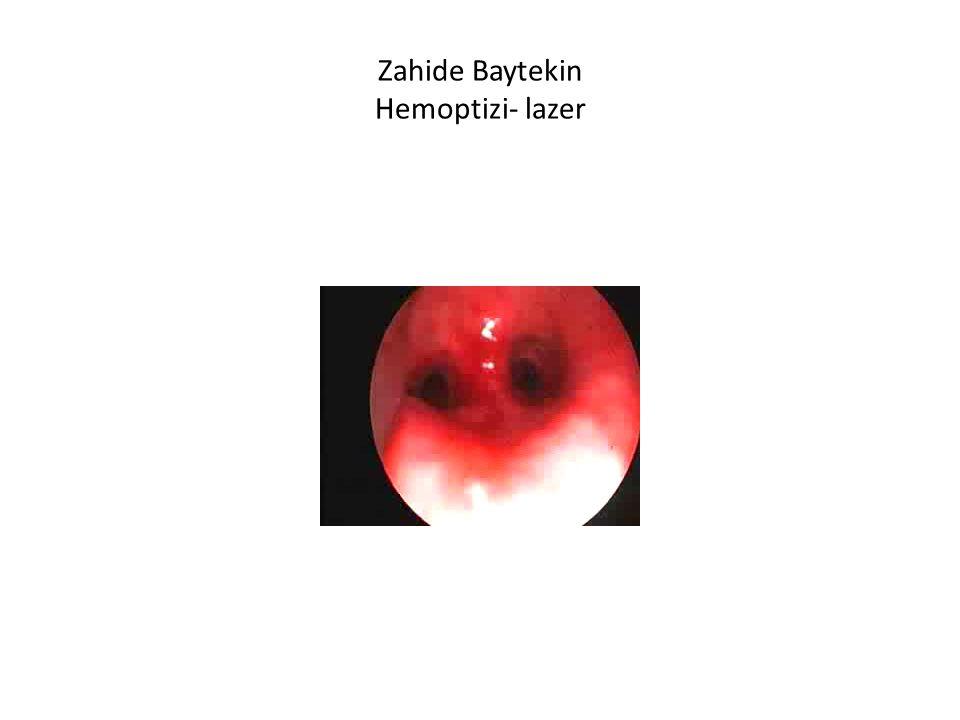 Zahide Baytekin Hemoptizi- lazer