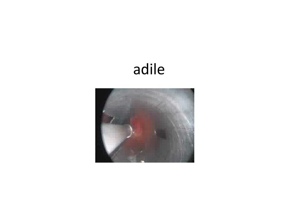 Adnan Kızgın Akciğer Ca-Sağ 2.3. kot posterior rez-RUL