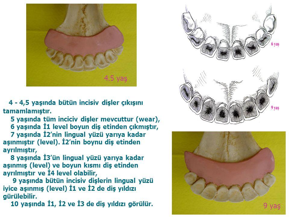 6 4 - 4,5 yaşında bütün incisiv dişler çıkışını tamamlamıştır. 5 yaşında tüm inciciv dişler mevcuttur (wear), 6 yaşında İ1 level boyun diş etinden çık