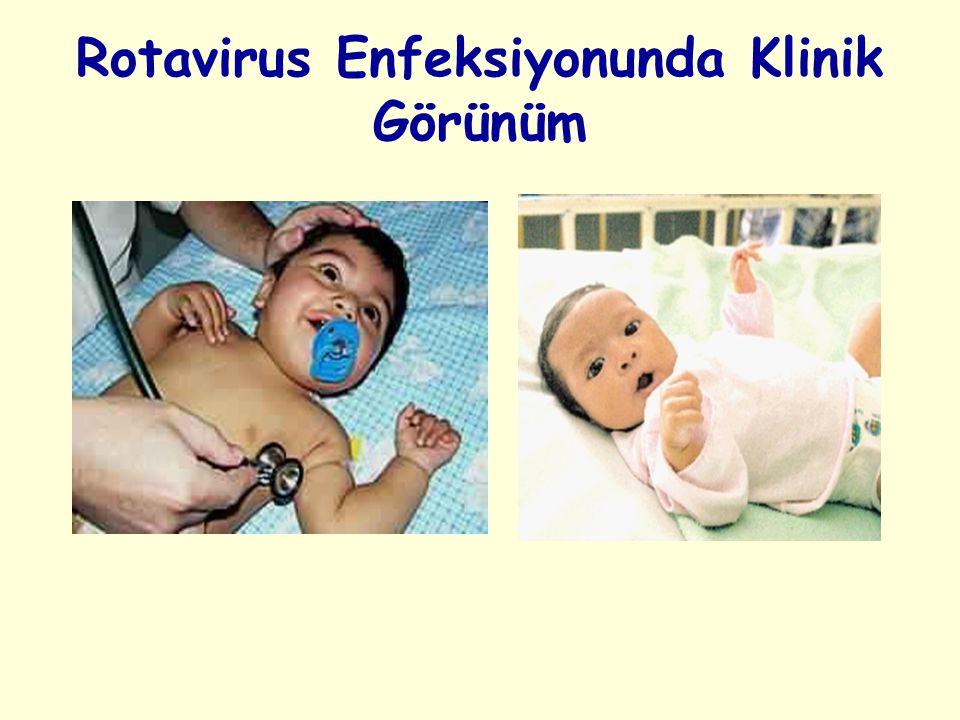 Rotavirus Enfeksiyonunda Klinik Görünüm