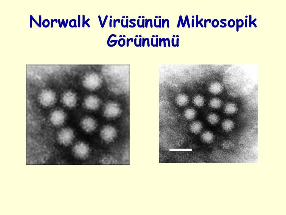 Norwalk Virüsünün Mikrosopik Görünümü