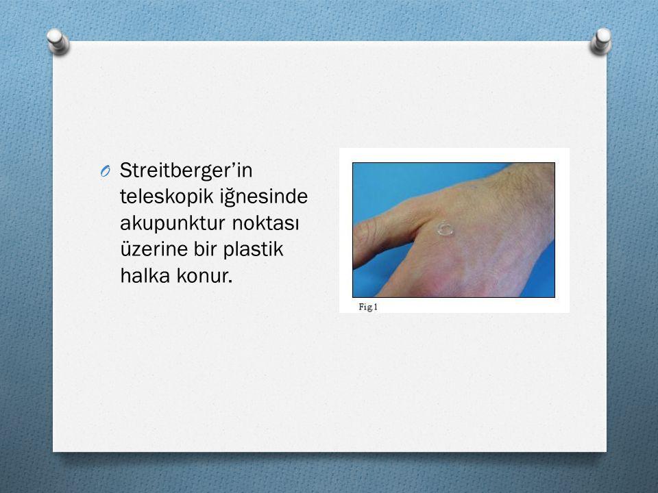 O Streitberger'in teleskopik iğnesinde akupunktur noktası üzerine bir plastik halka konur.